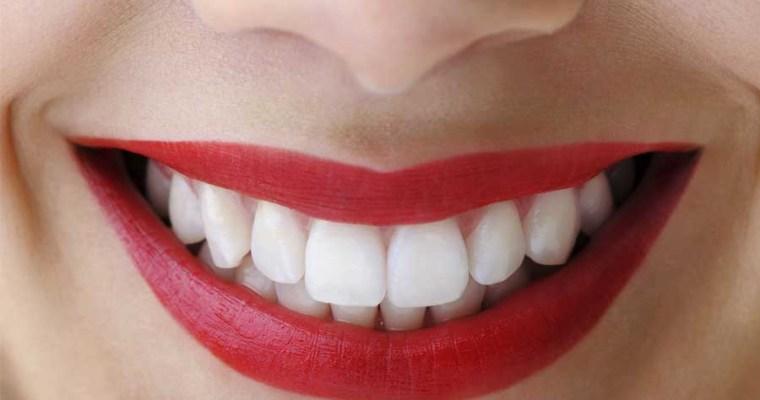 Tertarik Veneer Gigi? Apa saja yang Perlu Anda Perhatikan