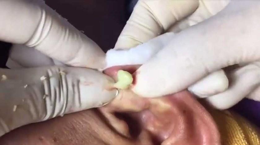 jerawat di telinga