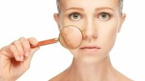 5 Cara untuk Menghilangkan Bintik Hitam Diwajah yang Tepat