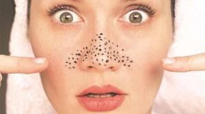 5 Cara Mencegah Komedo Dihidung dan Wajah Secara Alami