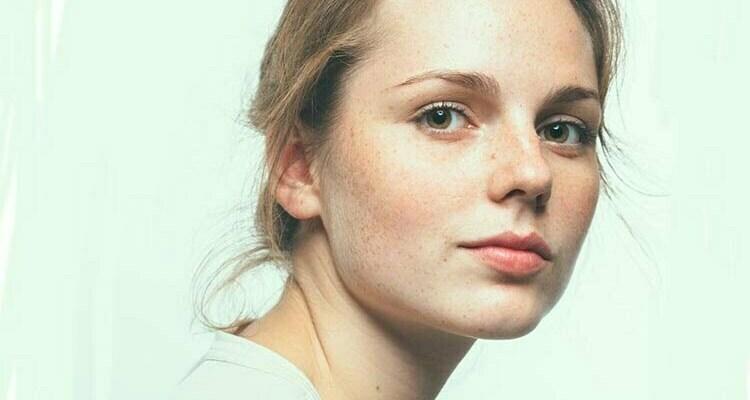 5 Fakta Tentang Freckles Pada Wajah yang Harus Anda Ketahui!