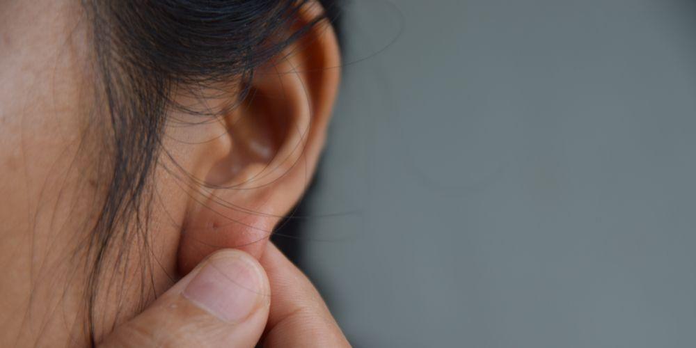 Penyebab Timbulnya Jerawat di Daun Telinga