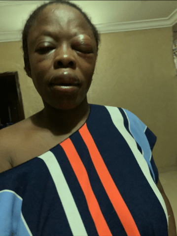 Voice over artist attacked by one-chance operators in Ikeja share photos of injuries inflicted on her