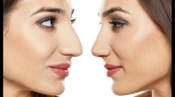 Rinofiller o Rinoplastica: come scegliere e perché?