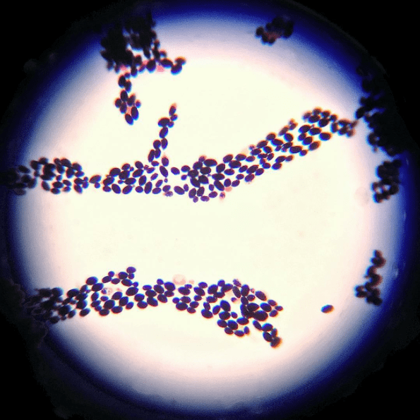 Closeup on the Leuconostoc Cremoris bacteria, a live and active probiotic strain found in our kefir. Thanks to dietitian student Hilda Zvizdich for capturing this image while researching the vitality of Lifeway's bacterial strains.