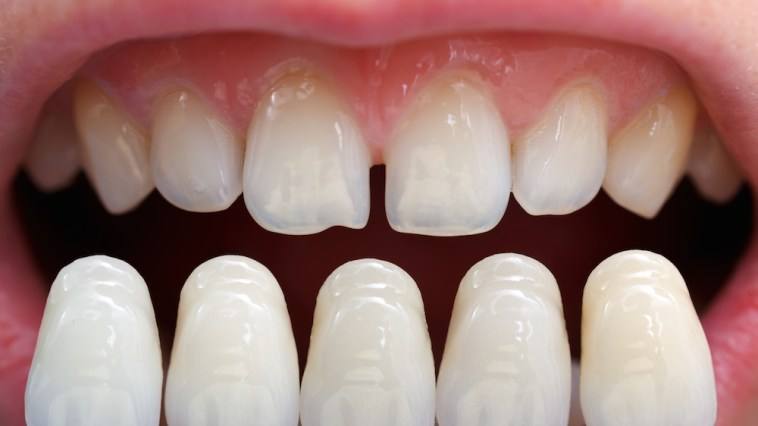 LXP Lifexpe Life Experience pros and cons of dental veneers costs