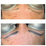 Tattoo Removal on Microbladed brows