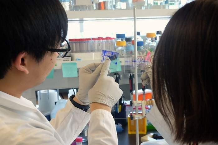 How cellular proteins control cancer spread