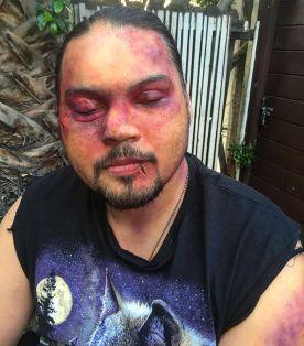 beat up bruised