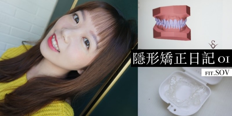 SOV隱形矯正日記 MIT隱形牙套價格/諮詢、配戴心得/注意事項總整理
