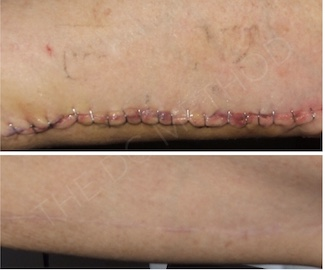 LDC_surgical_scars_6