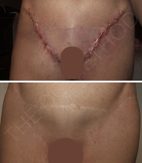 LDC_surgical_scars_8