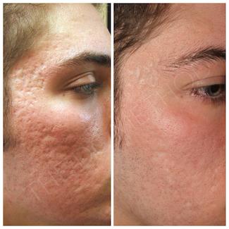 LDC_acne_scars_4