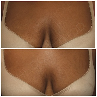 LDC_stretch_marks_010