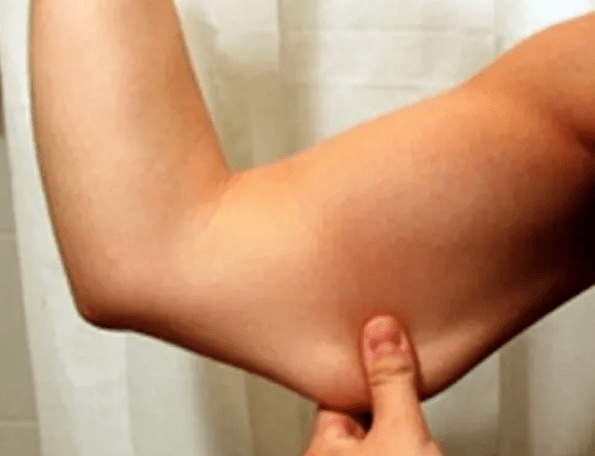 Say goodbye to loose skin on your arms and legs with these tips!