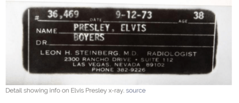 Elvis Presley s wrist X Ray ID label from X Ray