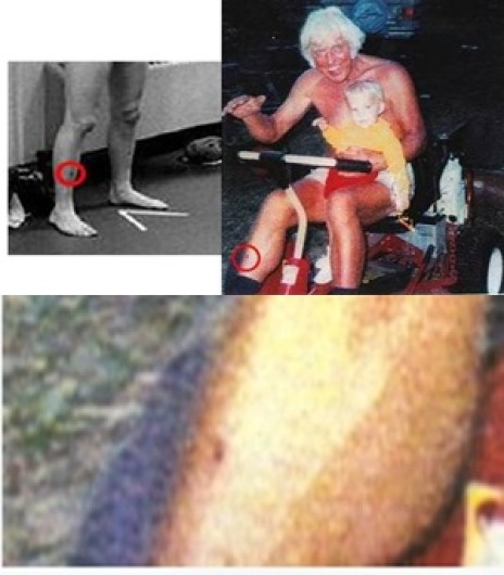 Elvis and Jesse matching scar on right leg from Lucilia with close up