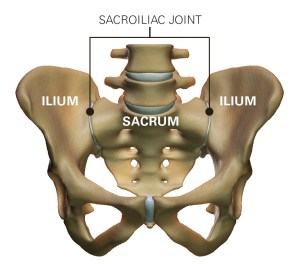 sacral torsion