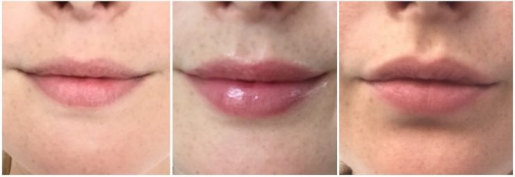 Filorga Nutri Filler Lips