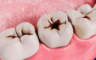 Жұбайлы терең кариес - стоматология күлімсіреу сызығы