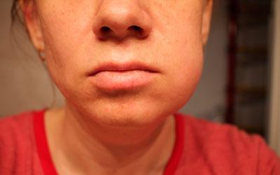 Жеке бас сүйек синустарының қабынуы - стоматологияның күлімсіреуі