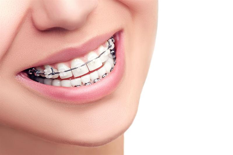 aparat ortodoncyjny