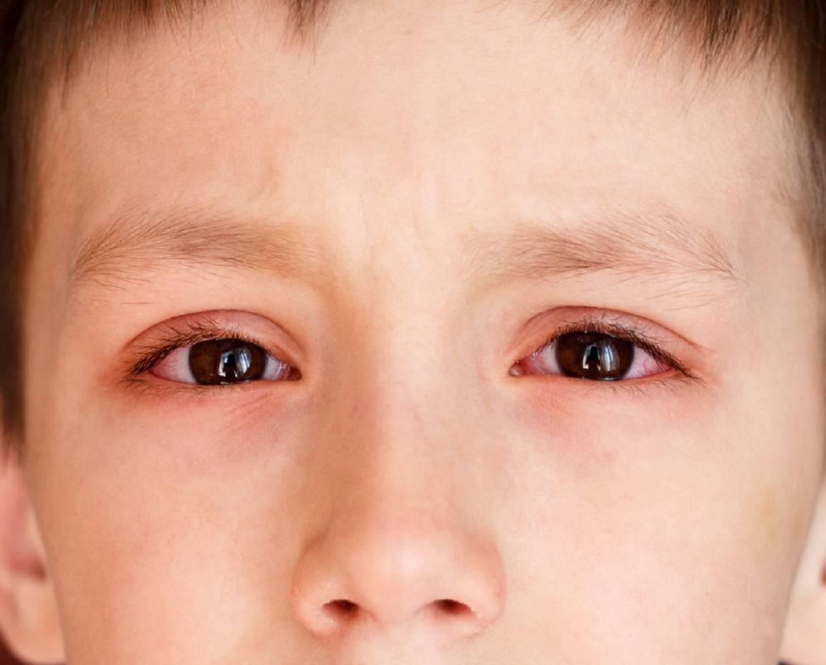 Причины аллергического ринита у ребенка