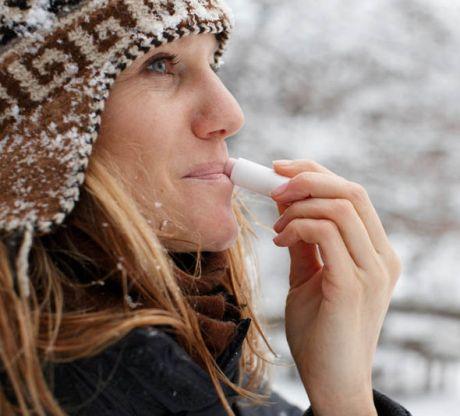 winter-dry-lips-462179