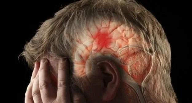 Coágulos en el cerebro