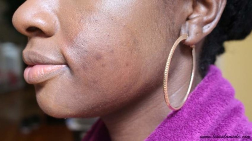 how-to-cover-up-acne-spots-on-dark-skin