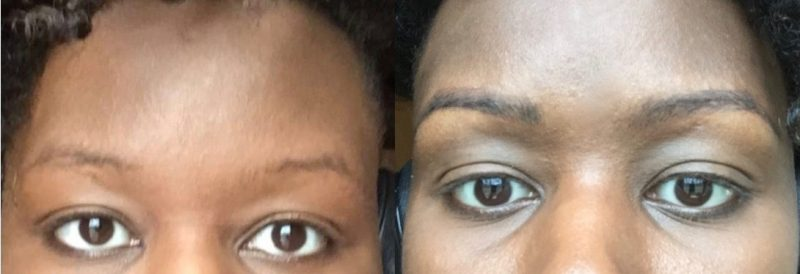 micro-blading-before-after
