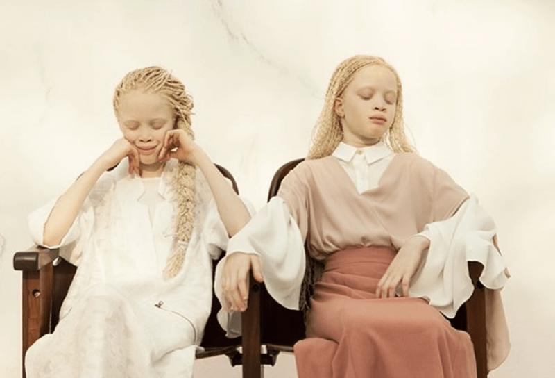 albino-twins-models-lara-mara-brasil
