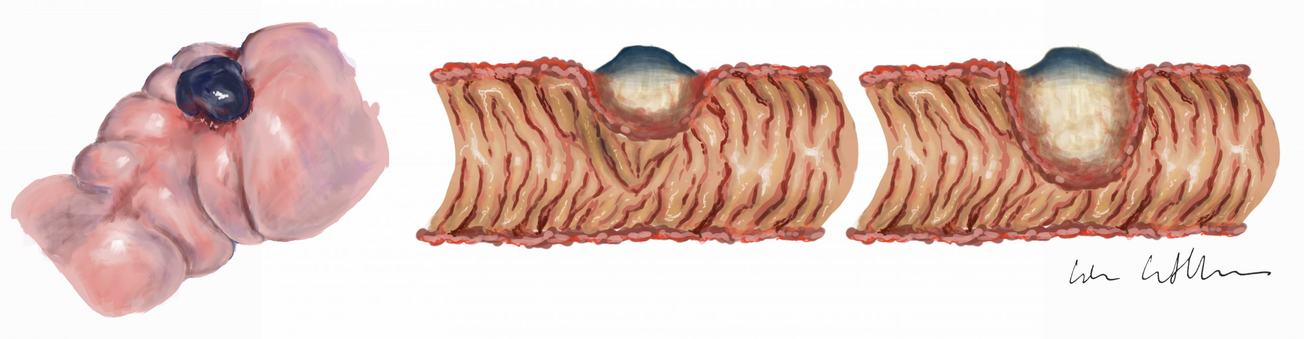 Deep infiltrating endometriosis, medical illustration, gynecology