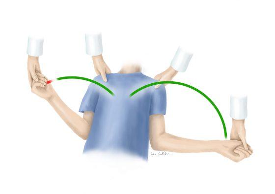 Eine Illustration von Lisa Cuthbertson die zeigt, was eine Frozen Shoulder in der Rheumatologie ist