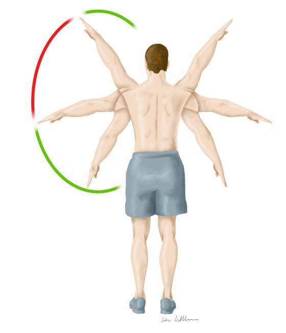 Eine Illustration von Lisa Cuthbertson die zeigt, was ein Painful Arc in der Rheumatologie ist