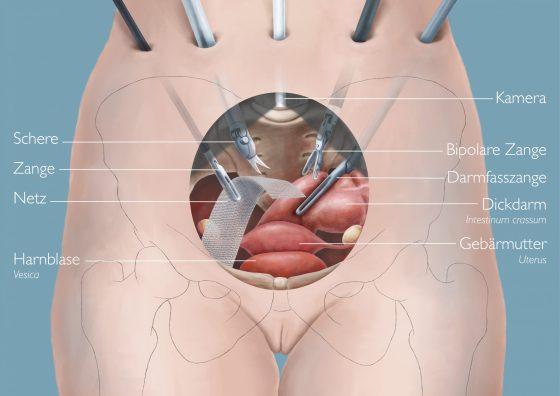 Eine Illustration von Lisa Cuthbertson welche die Instrumente einer Laparoskopie im Verhältnis zum Körper zeigt