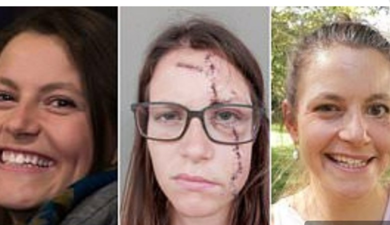 facial palsy swiss girl yoga bike accident