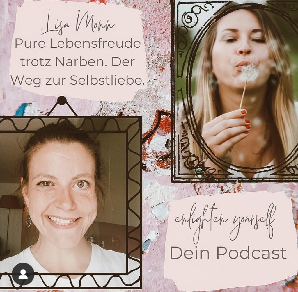 Lisa Monn Lebensfreude trotz Narben im Interview mit Simone Janiga