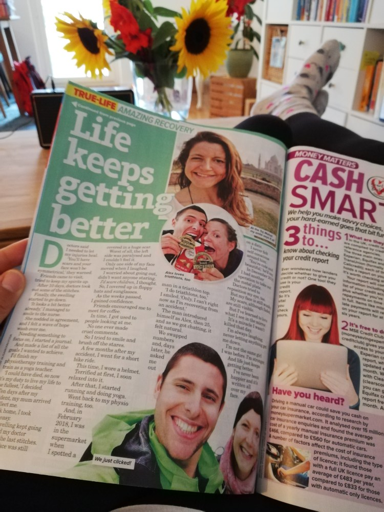 Lisa Monn in Chat Magazine UK Bike accident Face injury