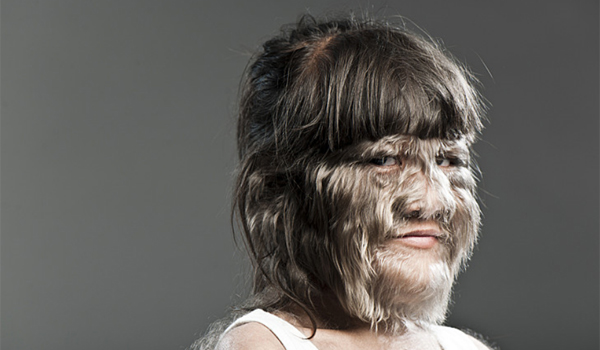 Human Warewolf Syndrome