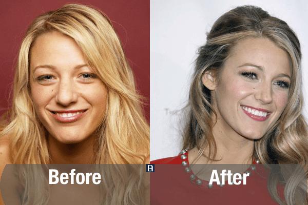 Blake Lively Plastic Surgery Transformation