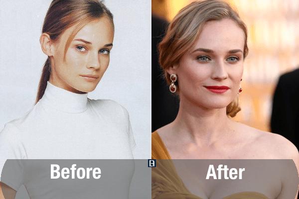 Diane Kruger Plastic Surgery Transformation