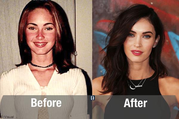 Megan Fox Plastic Surgery Transformation