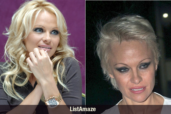 Pamela Anderson Before and After Drugs