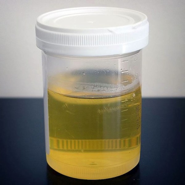 Urine therapy, by drinking urine