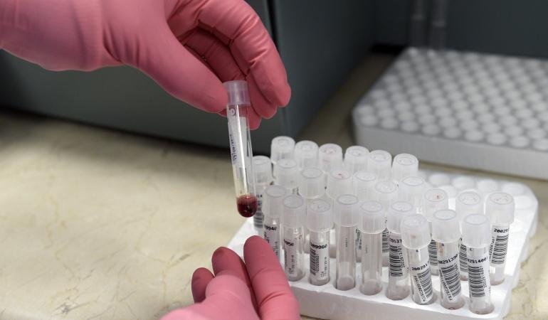 Paciente de VIH en remisión sin medicamento no es la cura pero da esperanza