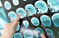 Células inmunitarias facilitan la capacidad invasora de tumores cerebrales
