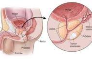 Cáncer de próstata es el segundo más frecuente en hombres