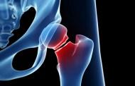 Veganos, vegetarianos y pescetarianos sufren mayor riesgo de fracturas óseas