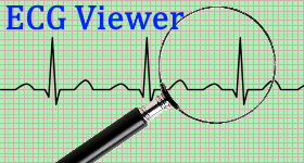 free ecg viewer software